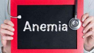 Cara Mengobati Anemia Paling Efektif