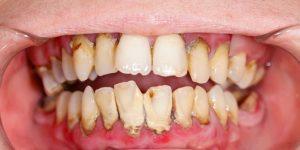 Bersihkan karang Gigi Jauhkan Kita Dari Bahaya Kesehatan Lainnya